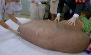 Человек с опухолью 80 кг